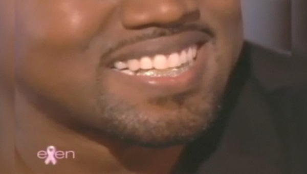 Kanye West Shows off Diamond and Gold Teeth